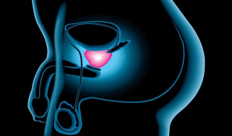 Cáncer de próstata – Detección, prevención y tratamiento