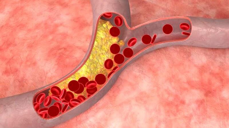 Colesterol y triglicéridos – Qué son y cuáles son sus valores normales