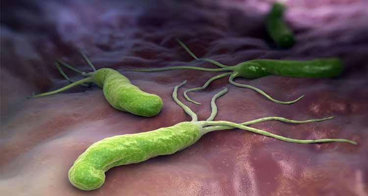 Helicobacter Pylori – Un inquilino de nuestro estómago muy molesto
