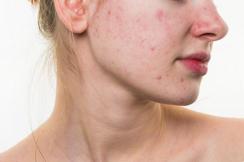 Remedios caseros para el acné – Tratamientos para el acné