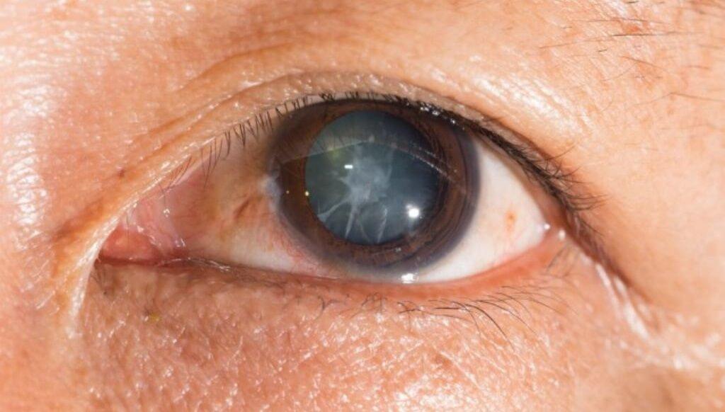 Cataratas – Síntomas, causas y tratamientos contra esta enfermedad