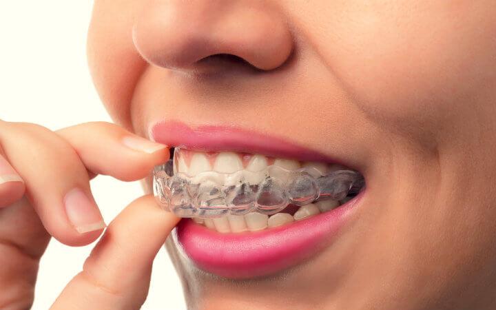 Brackets – Importancia de tener unos dientes perfectamente alineados