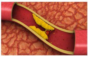 Consecuencias del descontrol del colesterol