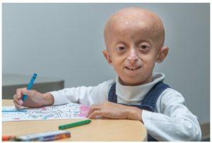 Sintomas de la progeria