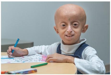 Lo Que Debes Saber Acerca de la Progeria
