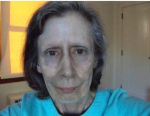 Causas del síndrome de Argiria