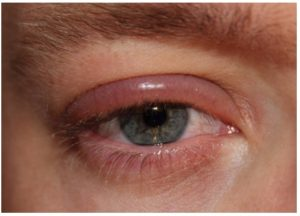 Síntomas de la Blefaritis